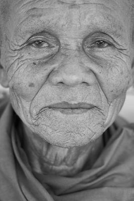 老年癫痫都有哪些症状