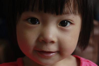 小孩癫痫病治愈需要多久