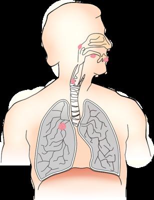 ?老年人患上肺炎的危害