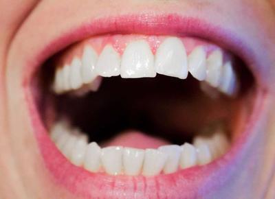 要知道口腔医学的研究领域方向众多