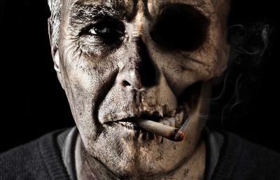 ?老年人甲亢容易误诊为低血钾肌麻痹