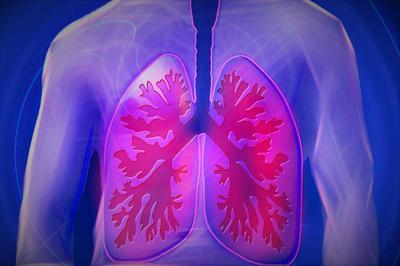 ?太恐怖了!咳嗽3个月竟查出肺癌