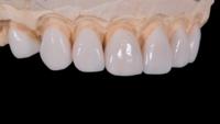 鑲牙與烤瓷牙的介紹以及二者的區別