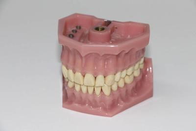 ?老年人掉牙应该怎么办