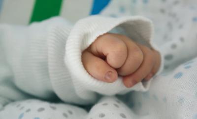 婴儿黄疸指数 婴儿黄疸指数正常值是多少