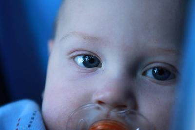 小孩膿皰瘡飲食療法有哪些 長了膿皰瘡應注意哪些飲食?