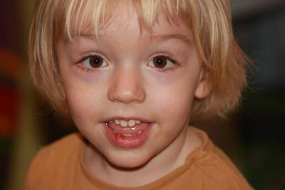 治疗儿童癫痫病的方法有哪些