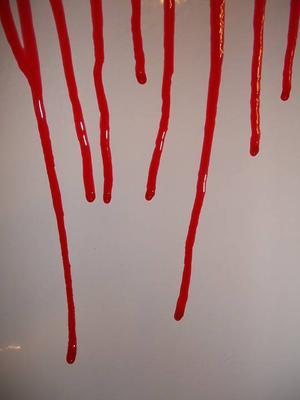 女性尿隐血2十需要治吗 尿隐血2十是什么意思