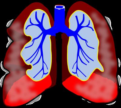 肺癌晚期如何食疗 检查出肺癌晚期还能活多久