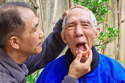 老年人治疗癫痫病去哪好