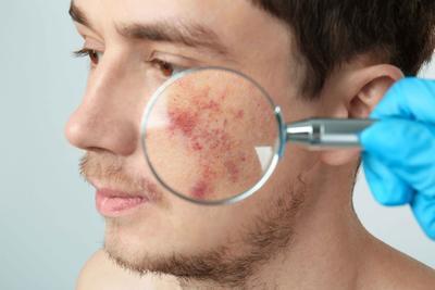 什么人容易长瘢痕疙瘩 瘢痕疙瘩的发病原因是什么