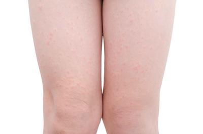 皮肤干燥吃什么东西比较好呢?