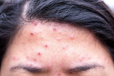 女性癫痫病治疗方法