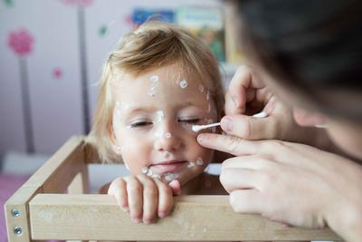儿童皮肤过敏怎么办 皮肤过敏不能吃什么