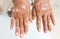 洛阳白斑白癜风患者诊疗时应注意什么