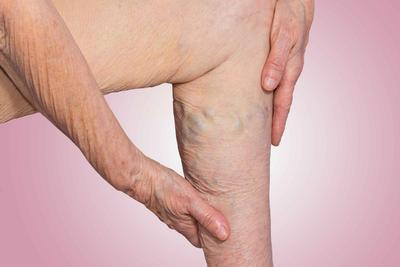 ?老年人腿部保健七大招