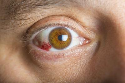 ?老人视力突降 警惕7病