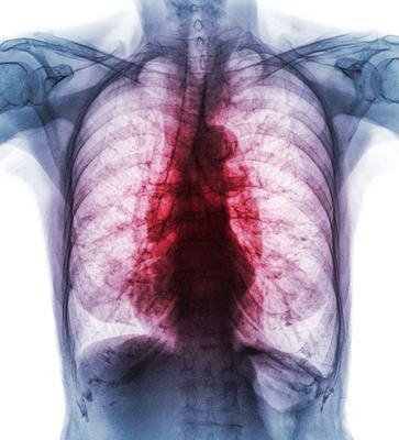 ?二手烟成女性肺癌主因