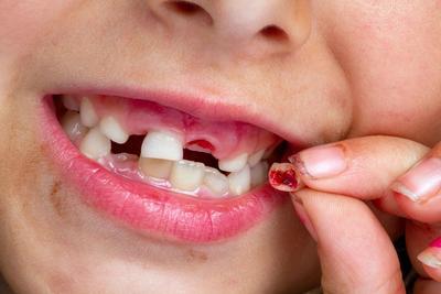 关注宝宝牙齿发育很重要