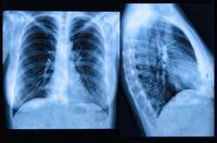早期肺癌的饮食禁忌有哪些 早期肺癌的3个饮食禁忌须知