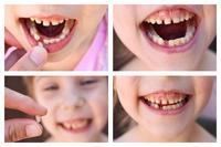 晚上磨牙是什么原因引起 晚上磨牙暗示身体有这些问题