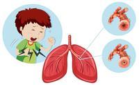 慢性肺心病的發病原因有哪些