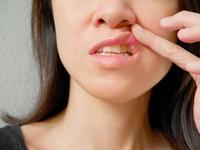 白塞氏病口腔溃疡治疗方法有哪些
