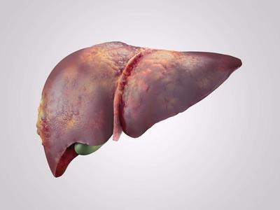 ?老年人药物性肝病不能吃什么