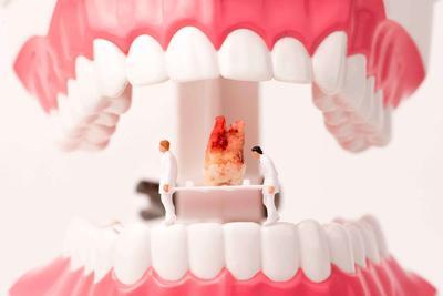 """别人拔牙100,为何你拔牙就得1000?中国牙科到底有多""""暴利"""""""