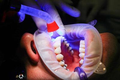 烤瓷牙怎么做根管治疗 根管治疗的适应症