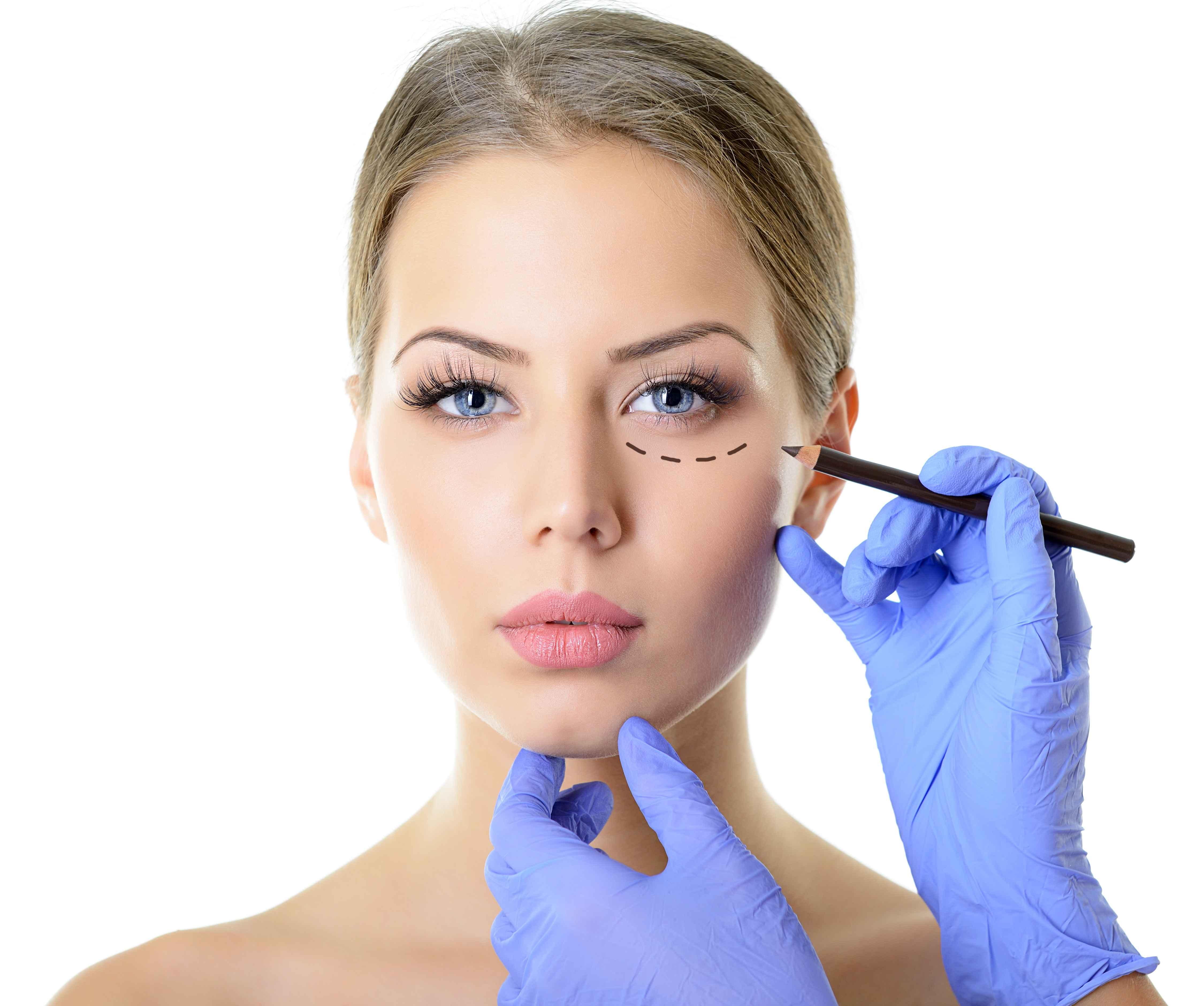 割双眼皮有白色增生疤痕怎么办割双眼皮竟割出这些后遗症