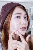 治疗痤疮专家有哪些方法 护理痤疮的方法