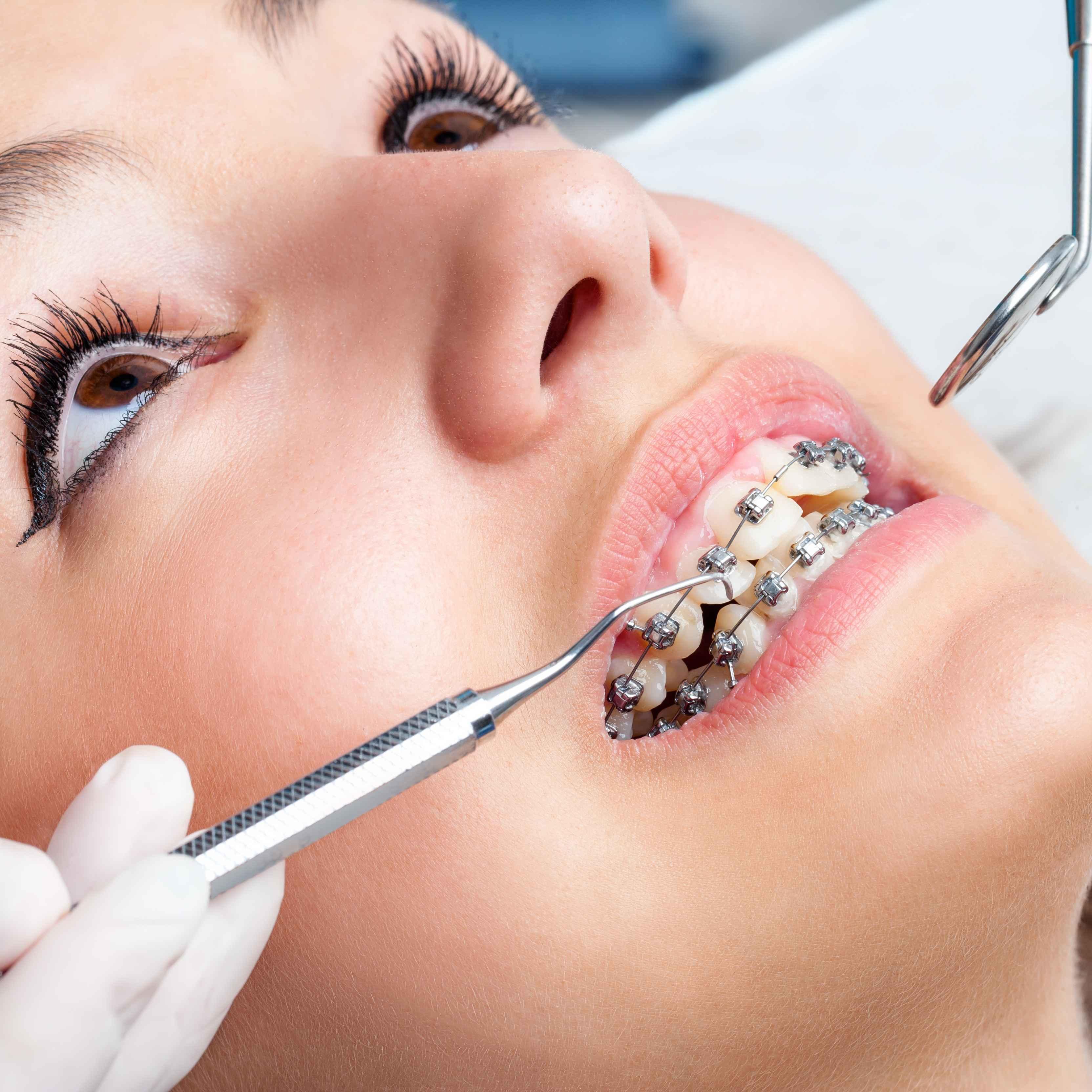 超声波洗牙会变白吗超声波洗牙需要注意什么