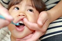 孩子为什么会发生龋齿 孩子龋齿是以为吃糖多吗