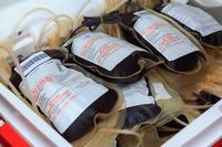 献血有害健康吗 说说献血的好处和坏处