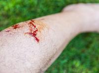 日本奈良鹿攻击游客事件创新高 如何避免被动物咬伤