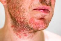 毛囊炎会让毛囊变大吗 毛囊炎皮肤有四个变化